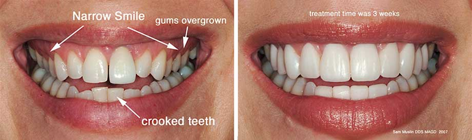 A closeup showing the outcome of dental veneer treatment to widen a smaile and address crooked teeth and overgrown gums.