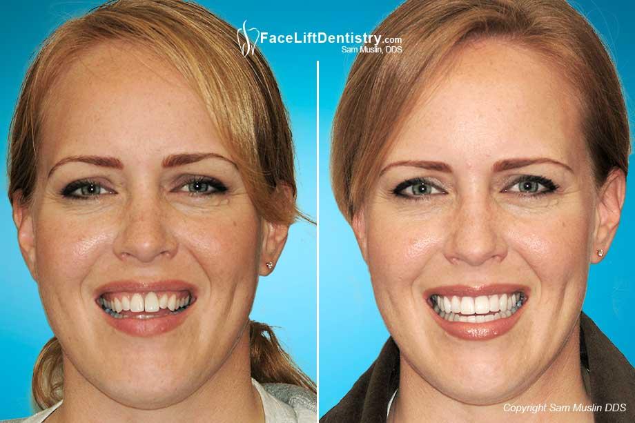 Dental Veneers To Widen The Smile