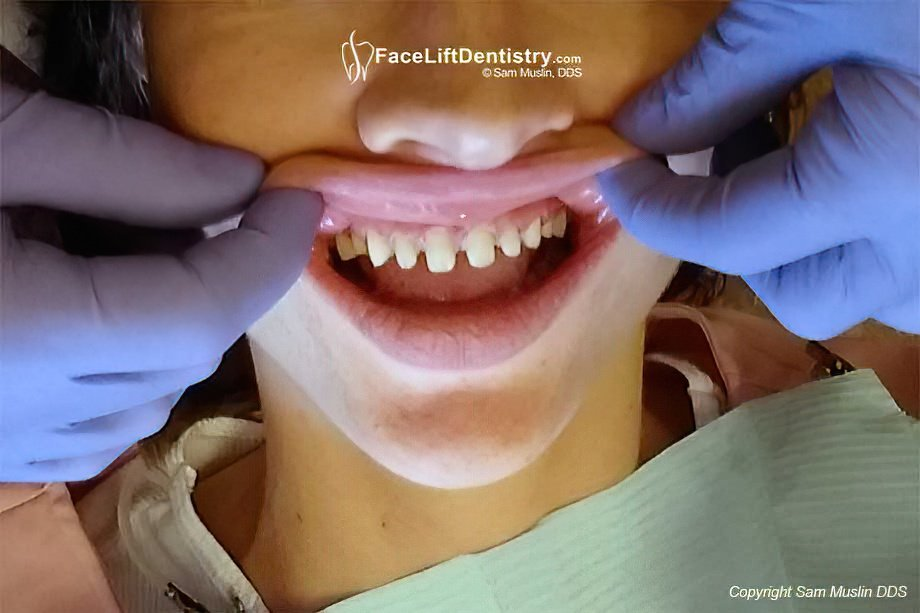 Healthy Tooth Enamle Drill Down for Porcelain Veneers