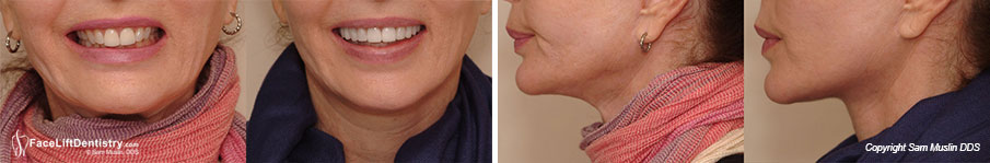 This series of photos show that Face Lift Dentistry<sup>&reg;</sup> goes beyond cosmetic dentistry by radicaly enhancing the patient's profile resulting in a much younger look.