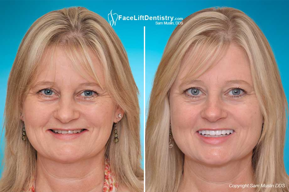 Face Lift Dentistry - Before and After