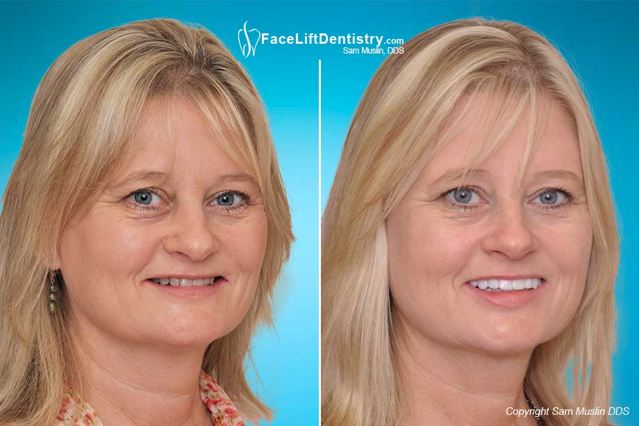 Face Lift Dentistry and Mouth Collapse