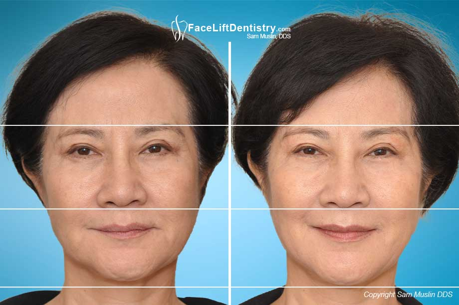 The effects of facial collapse is evident in this before and after photo.