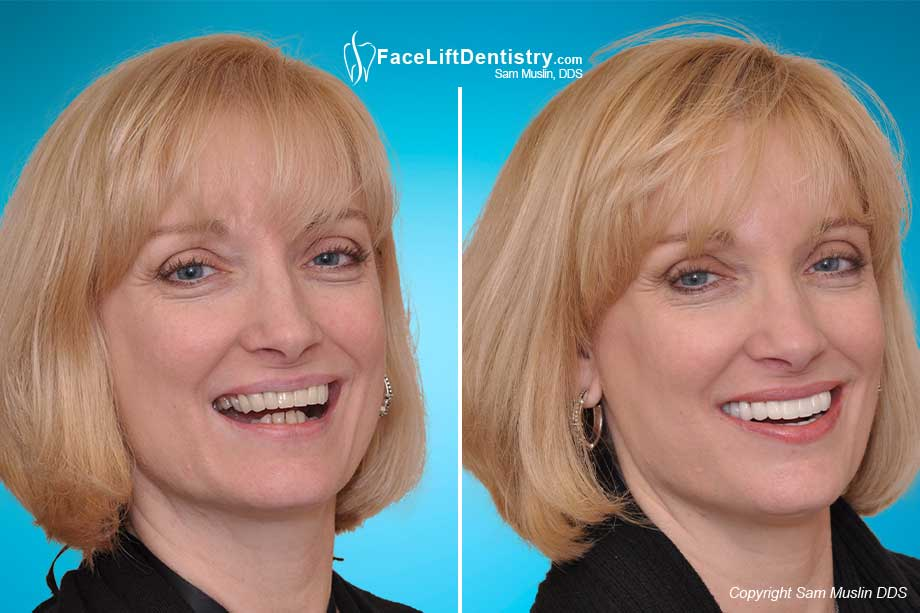 Balanced Jaw - Before and After Treatment
