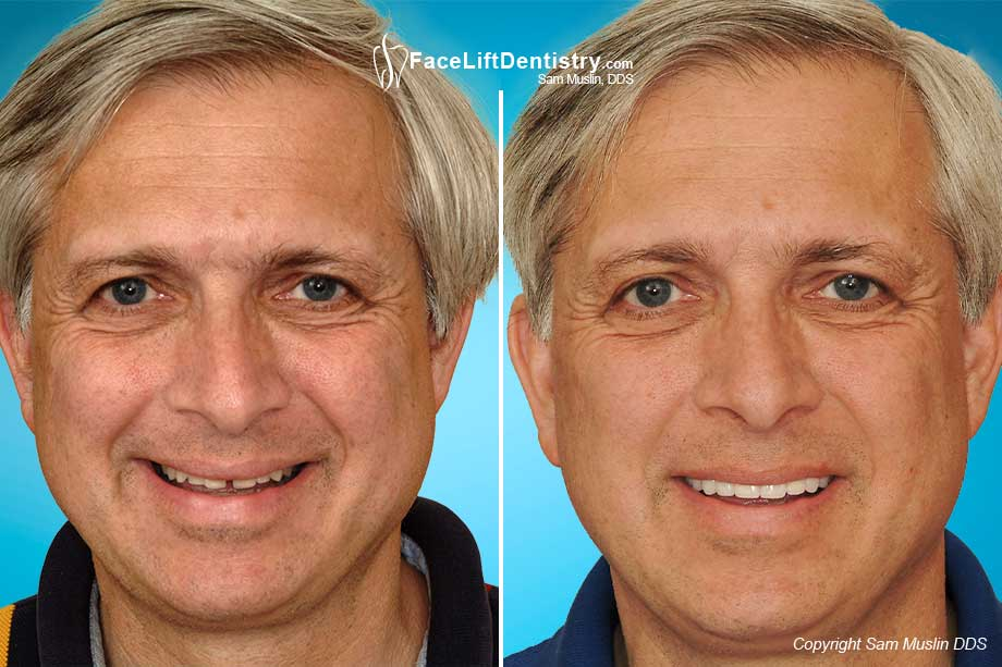 Face Lift Dentistry treats the entire face, not just the smile.