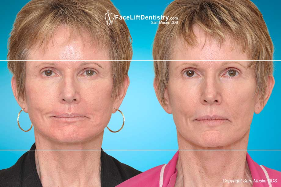 Reversing Aging and Facial Collapse by optimizing the jaw position