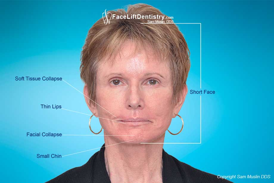 Photo highlighting the symptoms of facial collapse