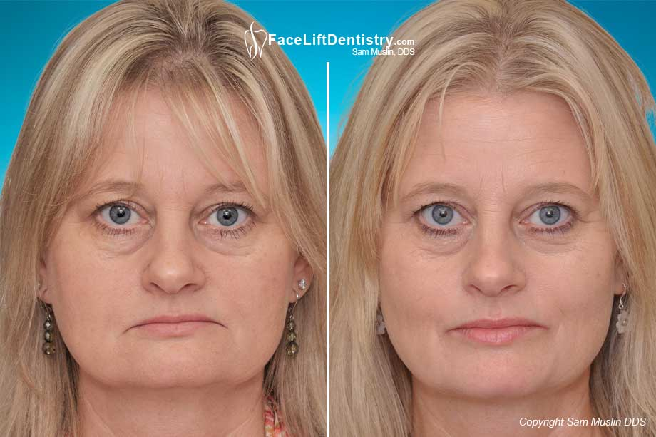 The Dental Face Lift - Before and After