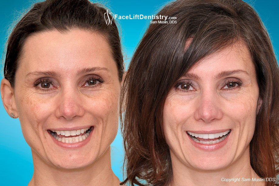 Before and After photo showing the results of facial tension reversal.
