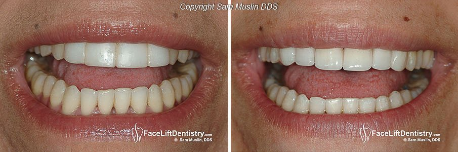 Fake-looking porcelain veneers was removed and replaced with ultra-thin custome veneers.