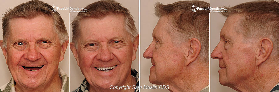 Full Mouth Reconstruction - Before and After