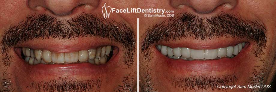 No more tetracycline stains - natural white teeth after treatment.