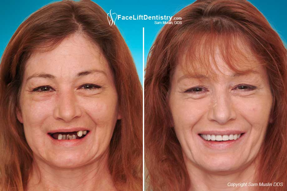 Mouth Reconstruction and Missing Teeth Replaced - Before and After Photo