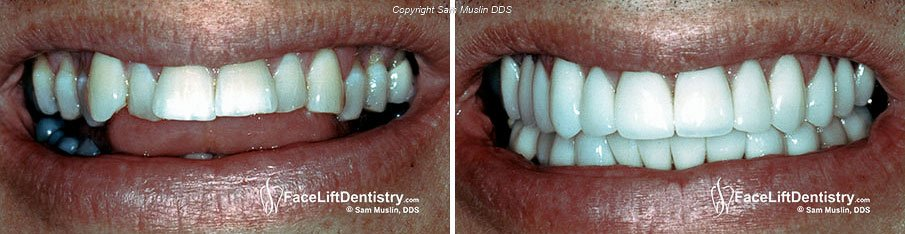Gap between teeth impaired speech - before and after treatement.