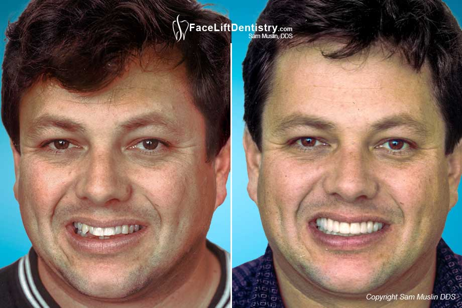 Before and After Photo showing Full Mouth Reconstruction