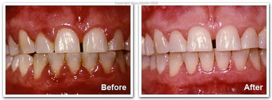 Gingivitis - Before and After Treatment