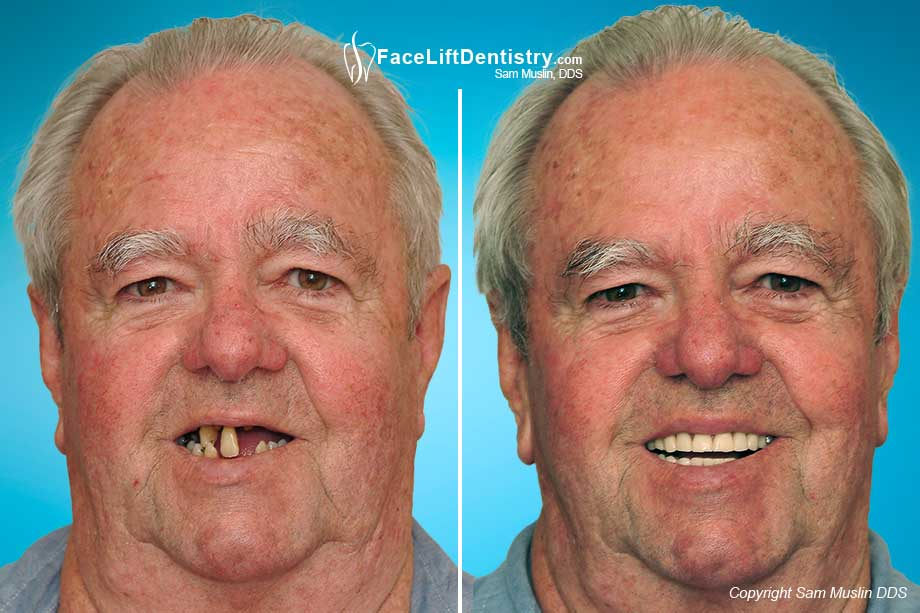 Cosmetic Dentistry Gone Wrong - Before and After