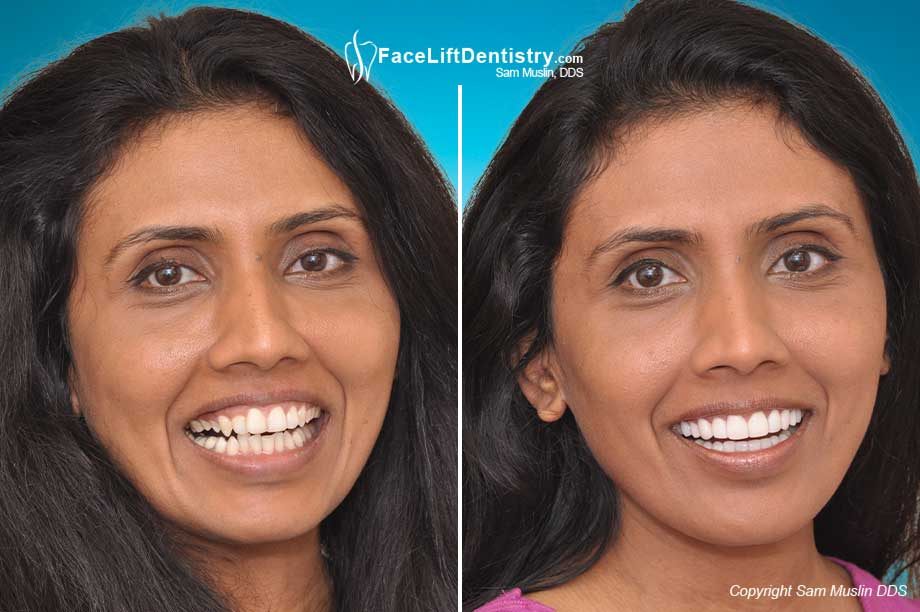 A gummy and a narrow smile corrected and her teeth treated with no-drilling porcelain veneers - before and after treatment