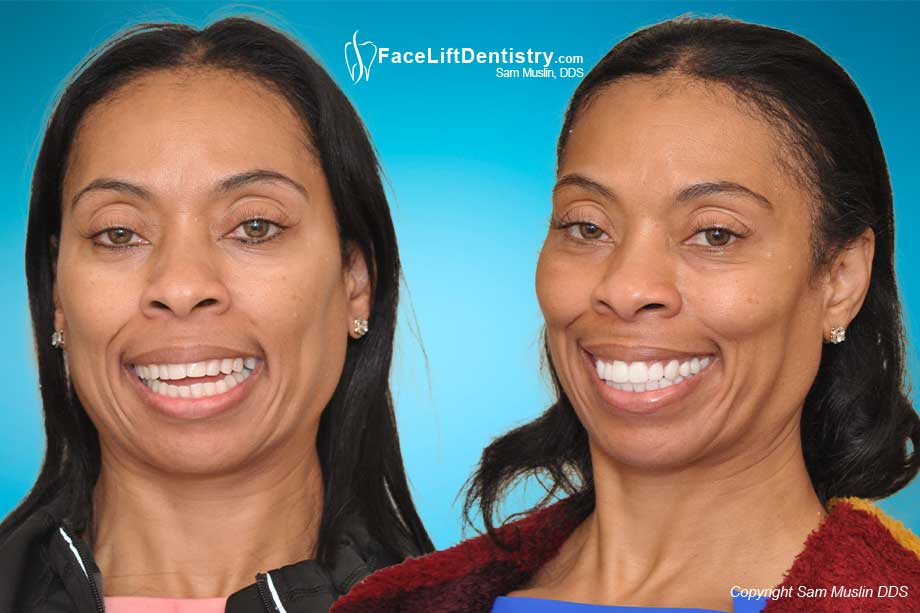 Before and after photo showing a patient with an open-bite, corrected in the after without surgery or braces