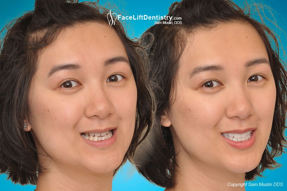 Hypodontia left her without back teeth. VENLAY Restoration correction, before and after.