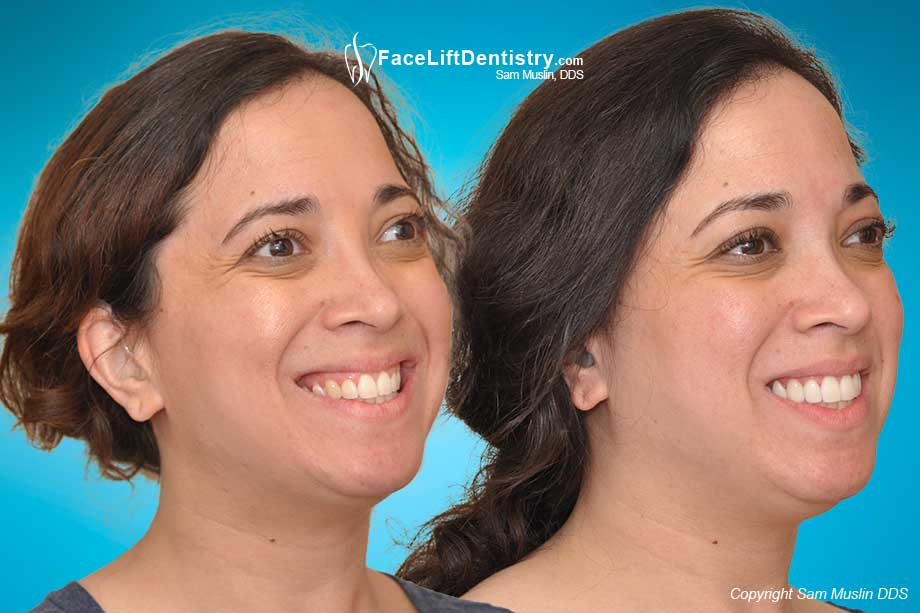 Jaw Position Improved for Speech Clarity - Aesthetic Benefits in Before and After Photo