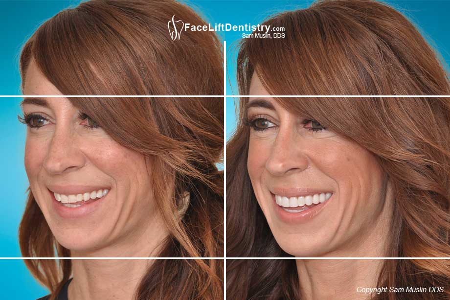 The photo on the left shows worn yellow crooked teeth and an overbite. In the after photo on the right the entire face shows the outcome of treating her bite with Face Lift Dentistry