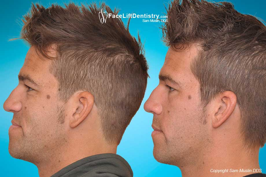 Move The Jaw Back Without Surgery