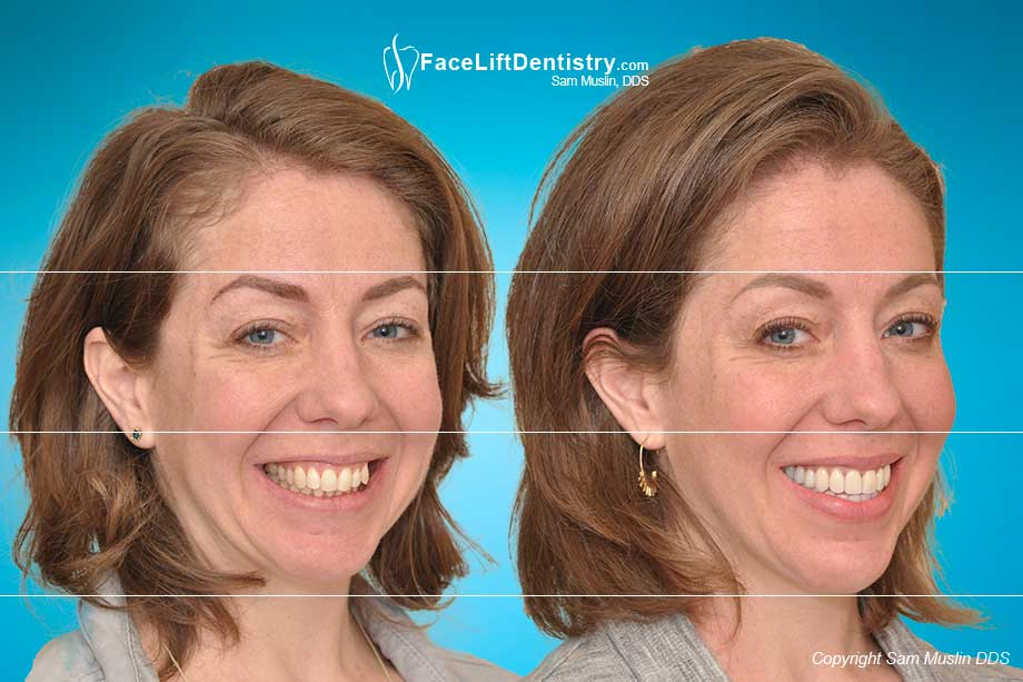 A stressed jaw position in the before photo, and a relaxed ideal jaw position in the after photo, with an enhanced facial profile and aesthetics.