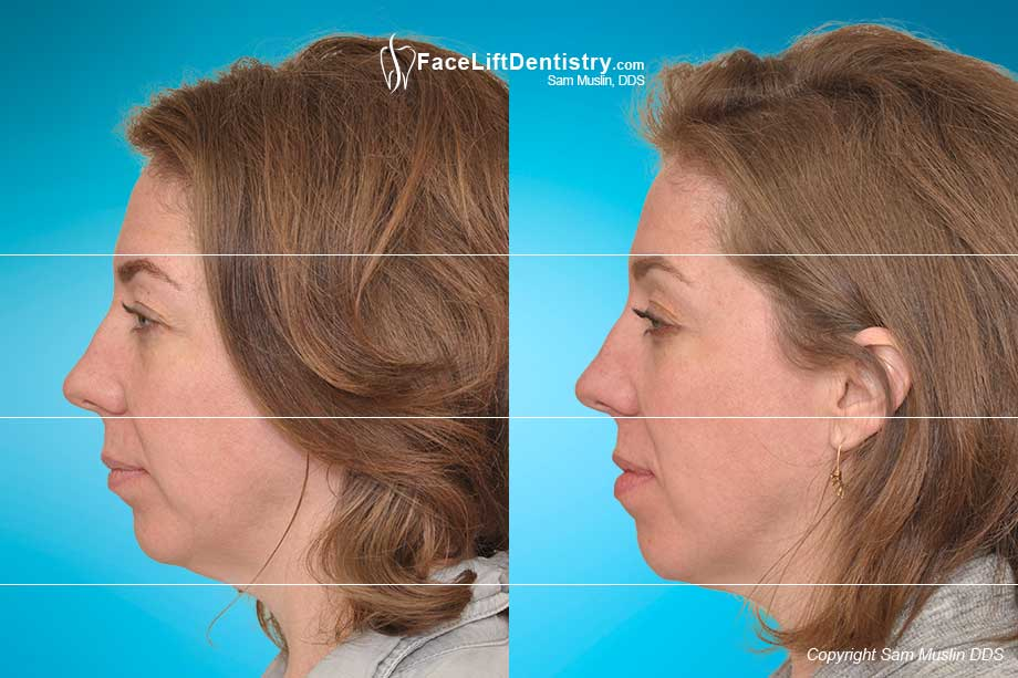 Before photo showing jaw tension. After photo shows a relaxed jaw with the jaw moved into the ideal position