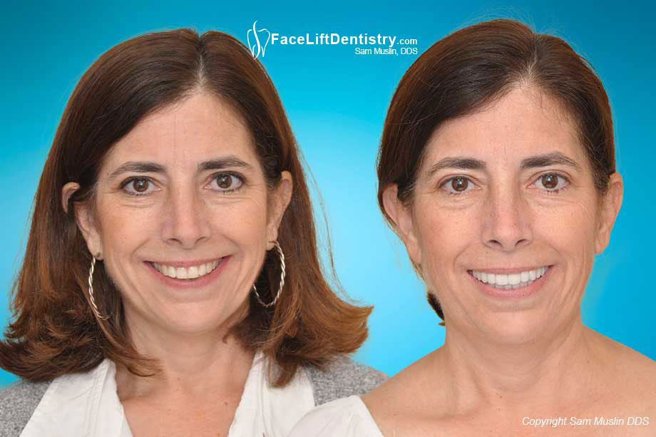 Jaw Tension and Neck Pain Treated without Surgery - Before and After Photo