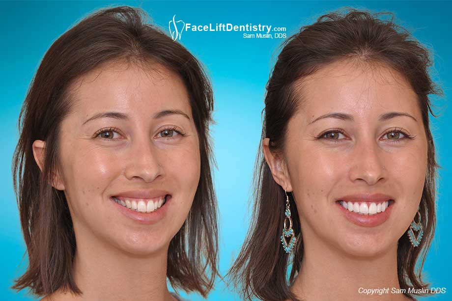 perfect smile veneers заказать