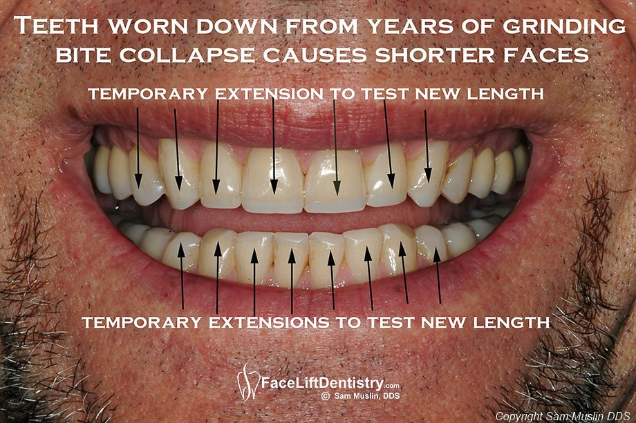 Lengthening short teeth with toothe extensions - before treatment