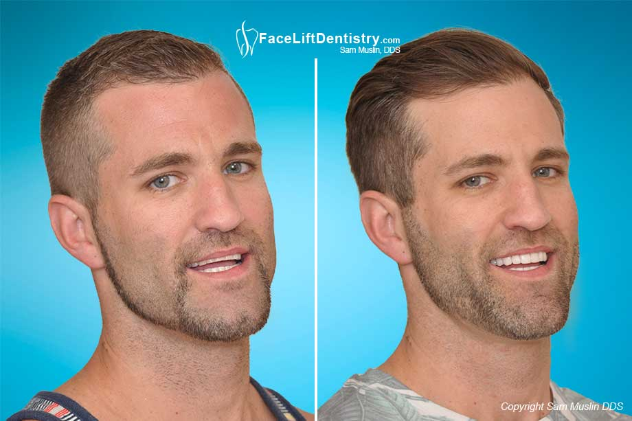 The Misaligned Jaw Symptoms And Treatment