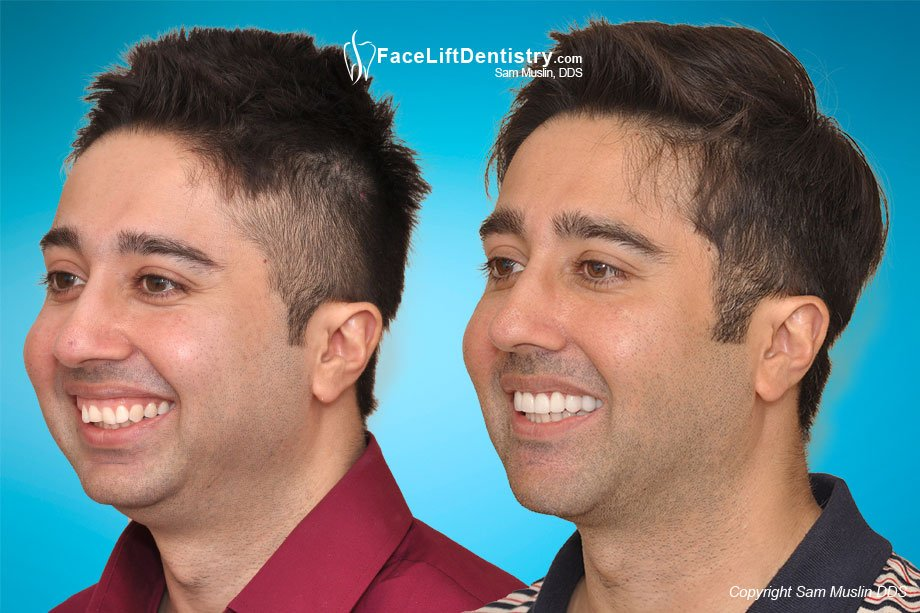 Misaligned jaw, small chin, and overbite corrected - Before and After