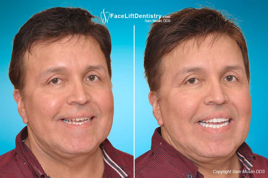 Misalligned jaw complications after jaw surgery, now corrected with VENLAY Restorations