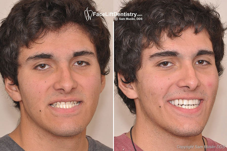 Underbite Corrected without Palate Expanders, SUrgery or Braces