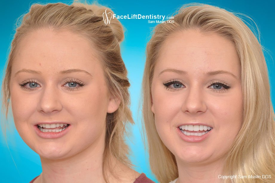 The photo on the left shows worn yellow crooked teeth and an overbite. In the after photo on the right the entire face shows the outcome of treating her bite with Face Lift Dentistry®.