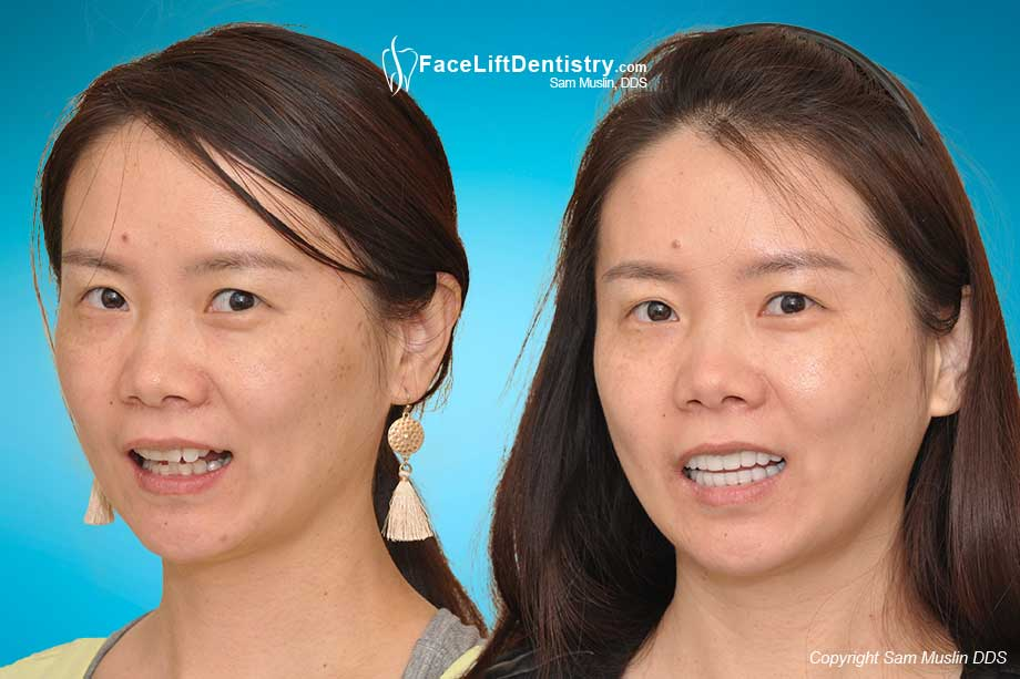 A narrow smile, crooked teeth, and deep overbite corrected - before and after