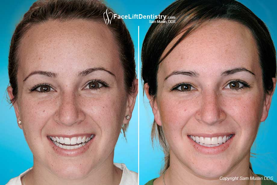 Teeth Whitening and a Wider Smile with Porcelain Veneers