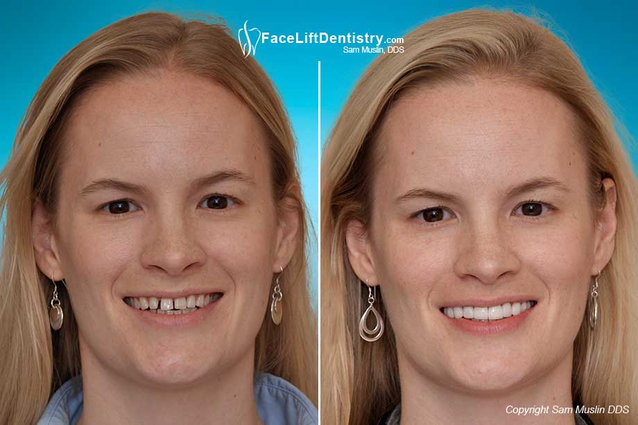 Before and after photo shoing teeth straigtening and gaps eliminated with non invasive porcelain veneers.
