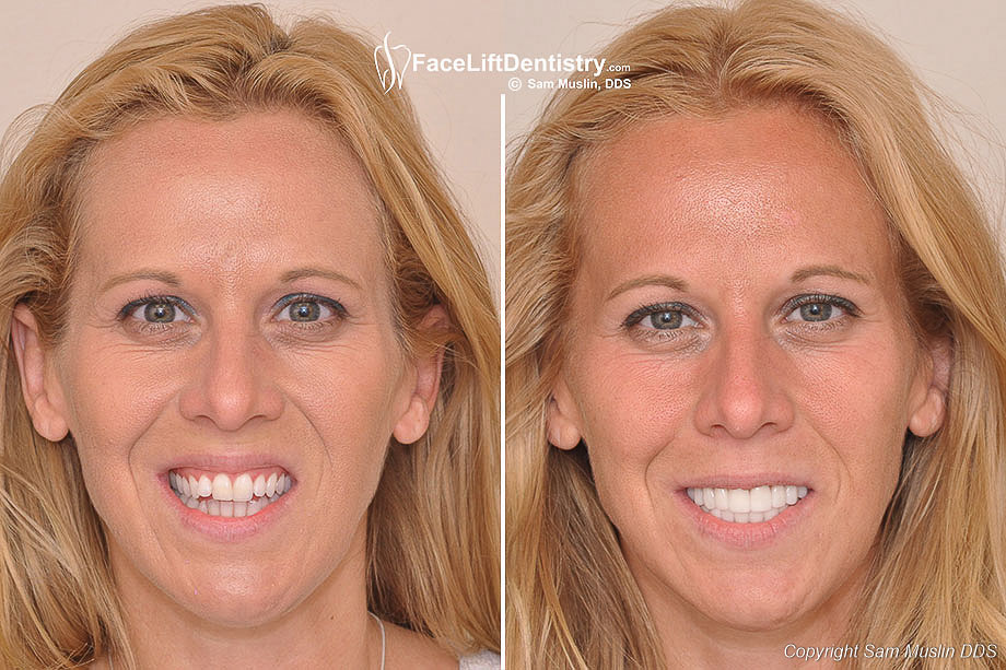 Open Bite Correction With Non Surgical Face Lift Dentistry 174