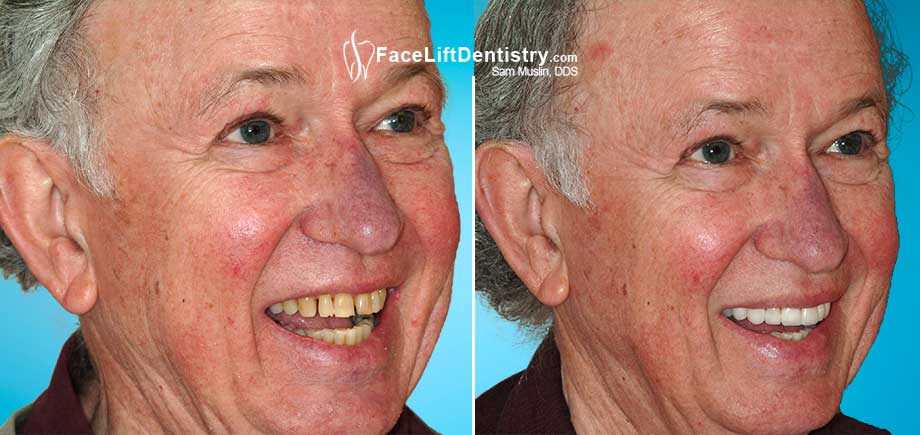 A senior patient smiles before and after non-invasive porcelain veneers were bonded to his teeth.