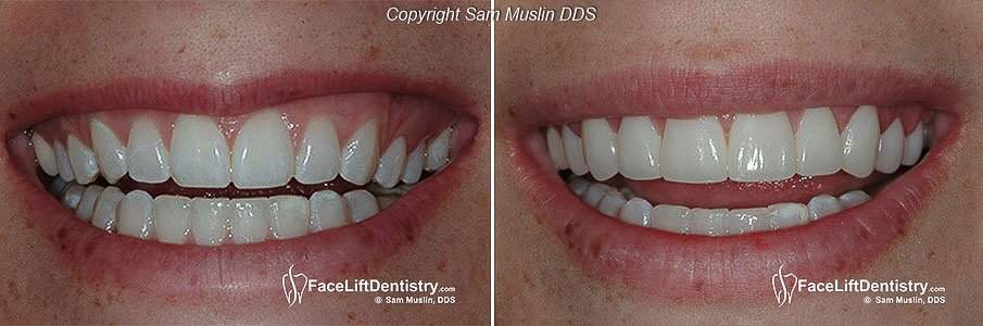 how to smile without showing bottom teeth