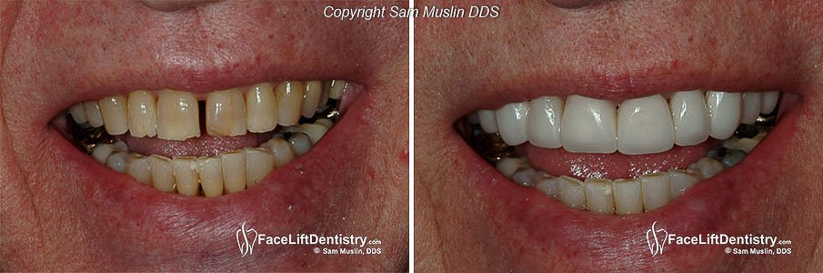 A senior patient's fractured and stained teeth restored with noninvasive porcelain veneers
