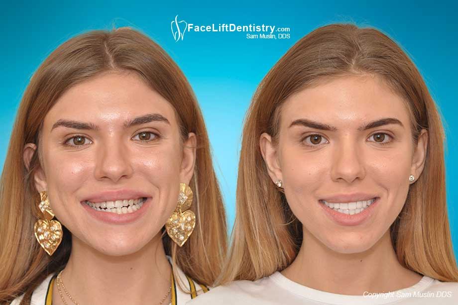 Avoiding Surgery, Braces, Bicuspid Extraction with non-surgical Face Lift Dentistry® Bite Correction - Before and After
