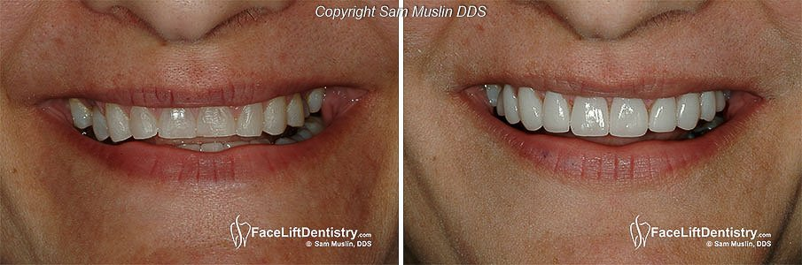 Closeup photo showing the patient's mouth before and after occlusal bite correction
