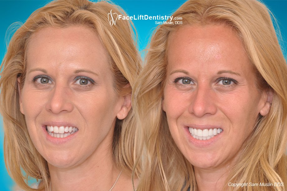 Open Bite Correction with Non-Surgical Face Lift Dentistry