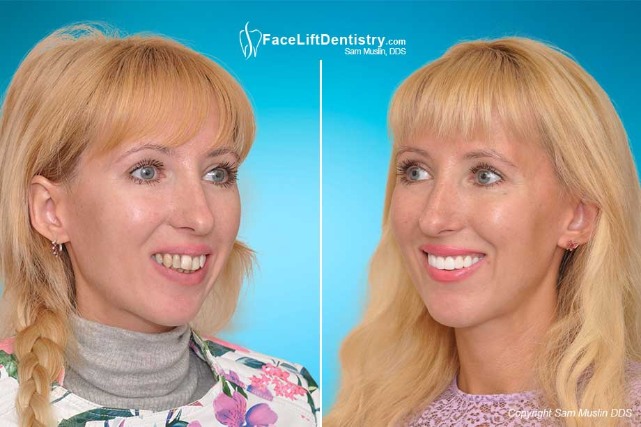 The photo on the right shows her open bite corrected and her teeth straightened - contrasted with the Before Photo on the left.