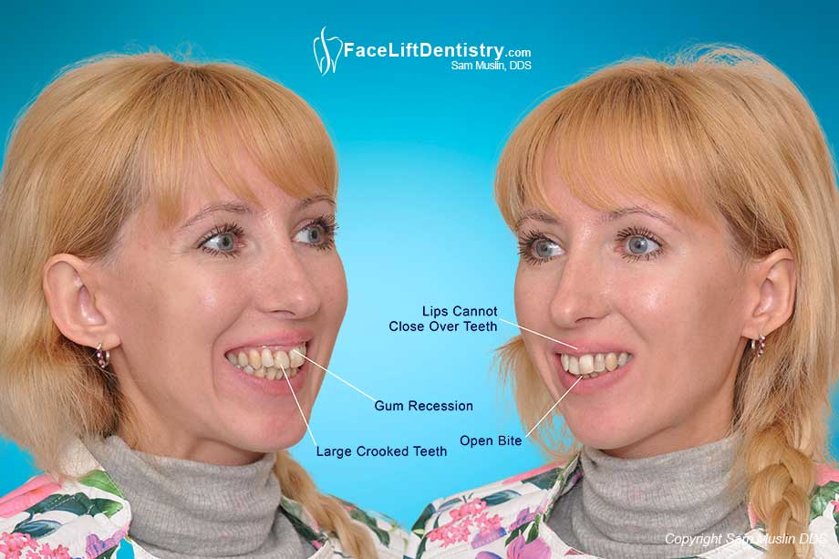 The photo on the left shows gum recession and large crooked teeth. On the right you can see the lips being pushed up and her open bite.
