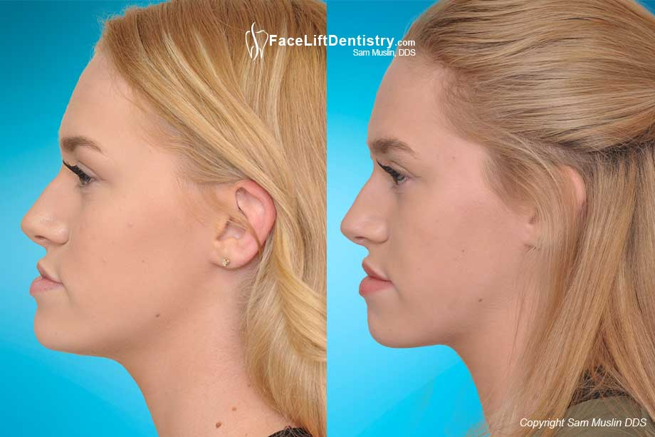 The Optimal Jaw Position - Before and After